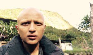 ayahuasca-alopecia