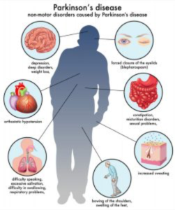 Parkinson's disease disorders. Via Kentucky Neurology and Rehab